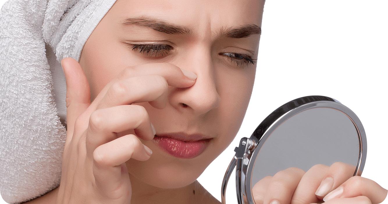 Cara Menghilangkan Komedo Putih Di Hidung Secara Alami Hasilnya Lebih Kabar Kata